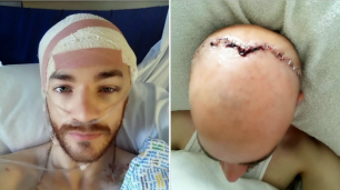assault-skull-fracture